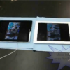Root Cause Of New iPad 3 Overheat Problem – A5X Quad-Core Processor